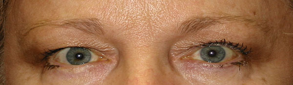 Eyelid Lifts